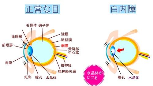 ◎ 紫外線のUVAとUVBによって、目にどんな影響があるのか?